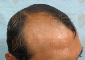latest hair transplant news