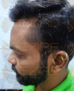 male pattern baldness cure 2016