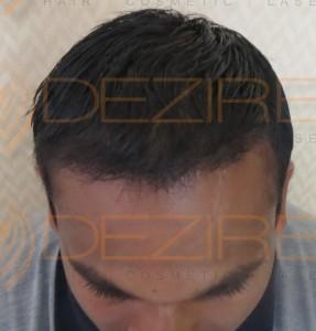 men's hair replacement alternatives