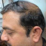 most advanced hair transplant technique