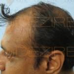 natural black hair growth
