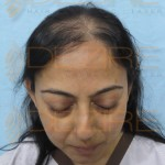 natural female hair loss treatment