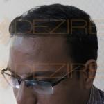 nerve pain after hair transplant