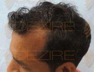 non surgical hair replacement disadvantages