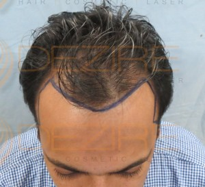 non surgical hair replacement maintenance