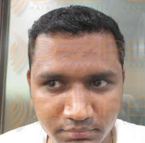 non surgical hair transplant in pune