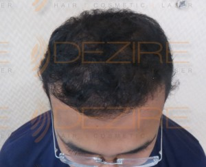 permanent hair replacement cost