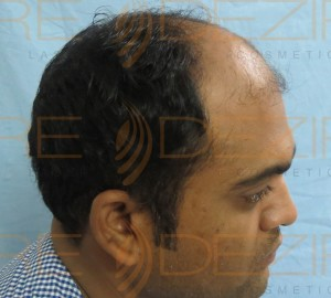 post fue hair transplant instructions