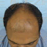 post hair transplant diet