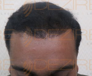 post hair transplant hair growth