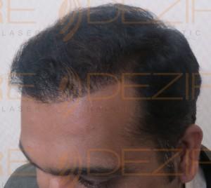 post hair transplant hair loss