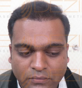 post hair transplant swelling