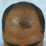 prp during hair transplant