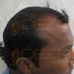 prp for hair loss cost