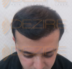 prp, fut hair transplant cost in Pune in rupees