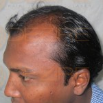 prp hair treatment cost in india