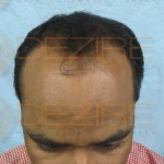 repair severely chemically damaged hair