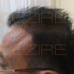 robotic hair transplant review