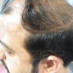 stem cell therapy for hair loss reviews