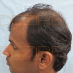 successful hair transplant celebritiessuccessful hair transplant celebrities