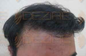 thinning hair shampoo