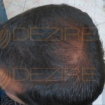 types of hair transplant in Pune
