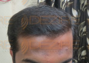 types of hair transplant in india