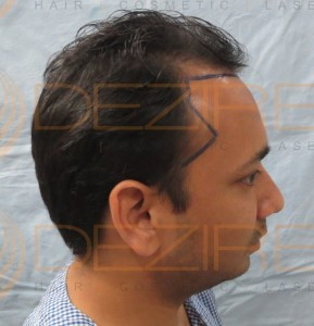 types of non surgical hair replacement