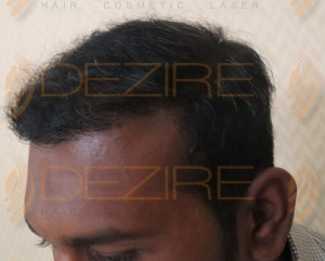 what can a dermatologist do for hair loss