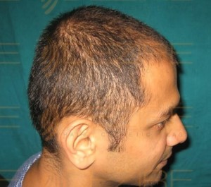 which is better prp or hair transplant