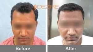 After Hair Transplant In Pune kiran bandgar 2000 fue
