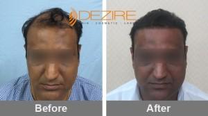 Alopecia Hair Loss In Pune pawan aggarwal 3000 fue-min