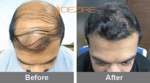 Amazing Hair Transplant In Pune nitin taneja 4800 fue2-min