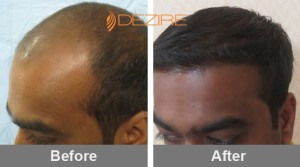 Approximate Cost Of Hair Transplant In Pune neeraj bhushan 2800 fue2-min