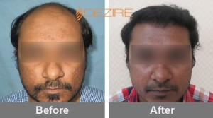 Average Cost Of Fue Hair Transplant In Pune mihir karanai 3000 fue-min