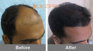 Average Cost Of Hair Replacement In Pune dr ashish mishra 3000 fue2-min