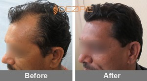 Average Cost Of Hair Transplant Surgery In Pune balraj shirale 2500 fue2-min