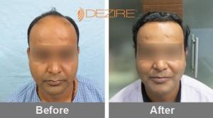 Bosley Hair Restoration In Pune ganesh madage 3000 fue-min