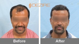 Chemotherapy Hair Loss In Pune mahesh bhujbal 2500 fue-min