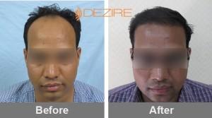 Cost Effective Hair Transplant In Pune balaji bozgane 2560 fue-min