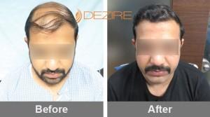 Dermatologist Hair Loss In Pune nitin taneja 4800 fue-min