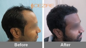 Eyebrow Hair Loss In Pune milind gaikwad 2132 fue2-min