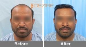 Follicle Transplant In Pune gajanan malekar 3000 fue-min