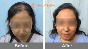 Frontal Hair Loss In Pune kalyani joshi 1500 fue-min