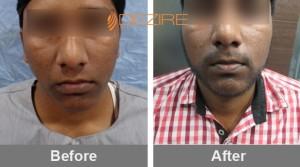 Fue Procedure Cost In Pune Kiran Gadekar 3500 fue beard-min