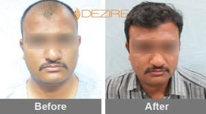 Fue Treatment Cost In Pune dipak nanaware 2500fue-min