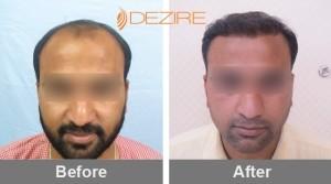 Hair Follicle Implants In Pune chandrakant mashalkar 3000 fue-min