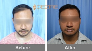 Hair Follicle Surgery In Pune mr-min
