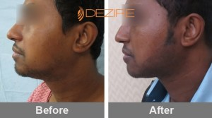 Hair Grafting Procedure In Pune khonkan das 1500 beard reconstruction-min