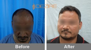 Hair Growth Surgery Cost In Pune Faisal 1 yr follow up 14-10-17-min